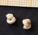 petrosa ulnae bones